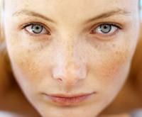 Уход за кожей лица весной